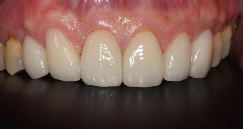 牙周病治療推薦: 包含全口牙周病/牙齦發炎治療/植牙/陶瓷貼片 4