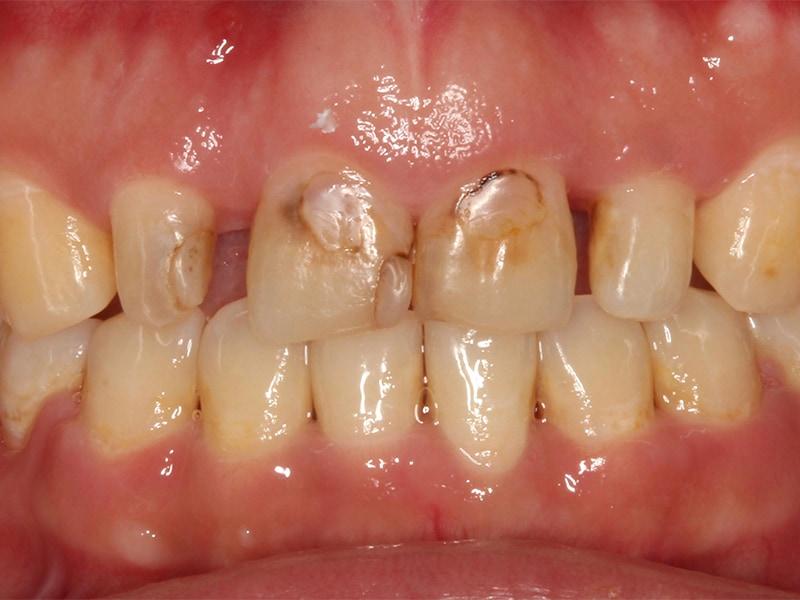 牙冠增長術改善笑齦,搭配全瓷貼片打造「完美微笑曲線」 2