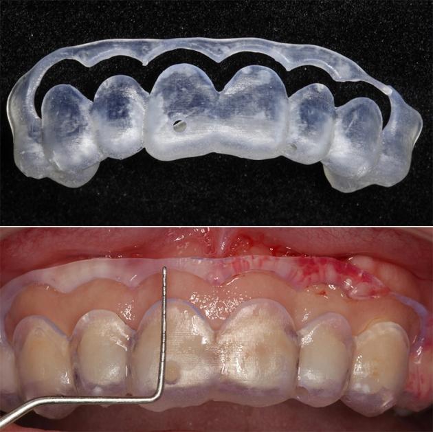 牙冠增長術改善笑齦,搭配全瓷貼片打造「完美微笑曲線」 3