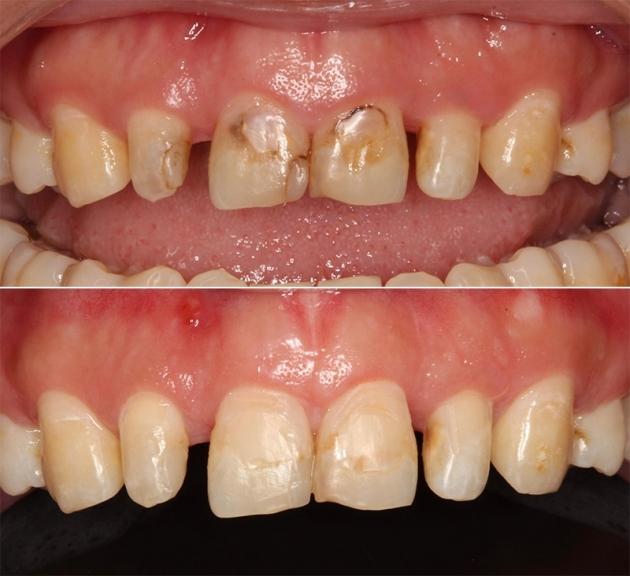 牙冠增長術改善笑齦,搭配全瓷貼片打造「完美微笑曲線」 4