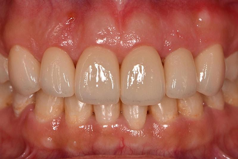 牙冠增長術改善笑齦,搭配全瓷貼片打造「完美微笑曲線」 5