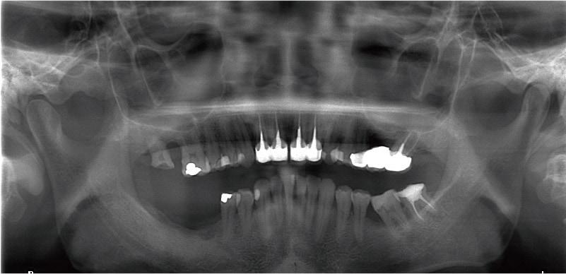 嚴重牙周病治療推薦: 療程包含全瓷冠/陶瓷貼片/植牙 2