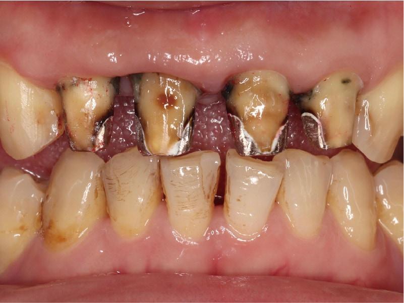 嚴重牙周病治療推薦: 療程包含全瓷冠/陶瓷貼片/植牙 4