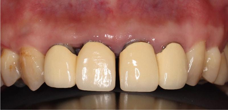 嚴重牙周病治療推薦: 療程包含全瓷冠/陶瓷貼片/植牙 3