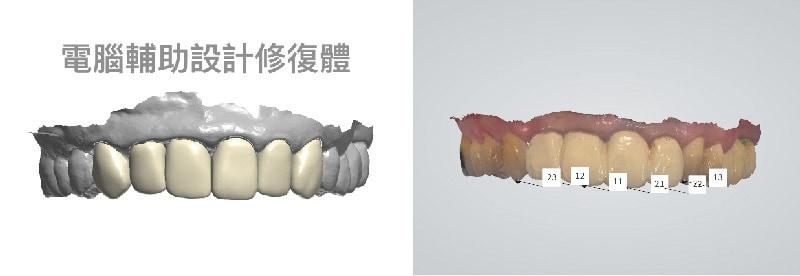 嚴重牙周病治療推薦: 療程包含全瓷冠/陶瓷貼片/植牙 5