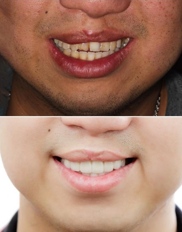 舒眠植牙治療推薦: 包含根管治療後植牙/陶瓷貼片療程 3