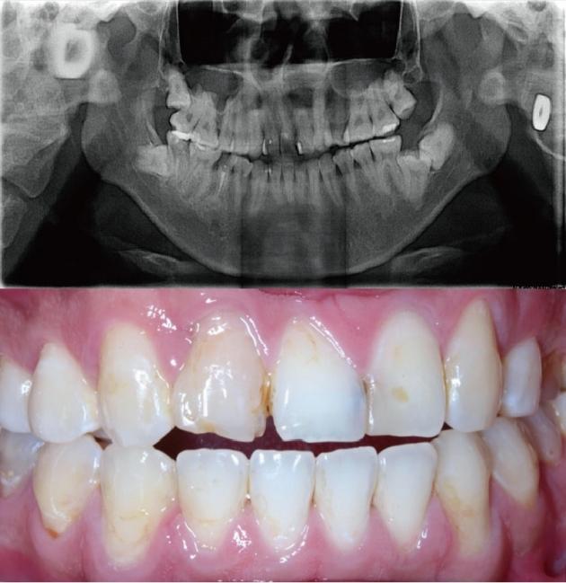 舒眠植牙治療推薦: 包含根管治療後植牙/陶瓷貼片療程 2