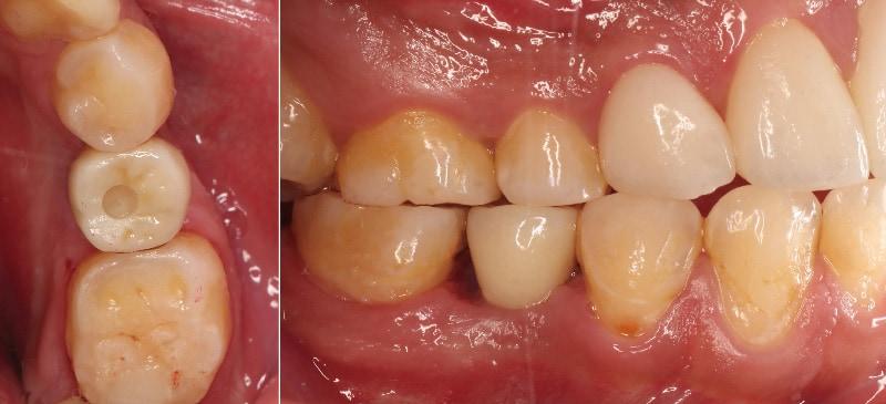 舒眠植牙治療推薦: 包含根管治療後植牙/陶瓷貼片療程 4
