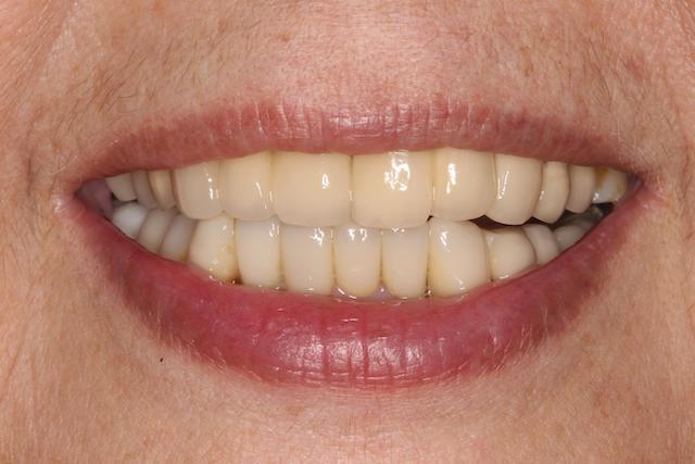 牙周病治療推薦: 療程包含全口牙周病/全瓷冠假牙/陶瓷貼片/植牙 5