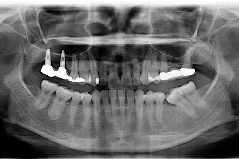 中度牙周病治療推薦 全口牙周病牙冠增長術鼻竇增高術 1