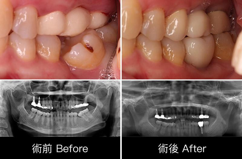 中度牙周病治療推薦 全口牙周病牙冠增長術鼻竇增高術 2
