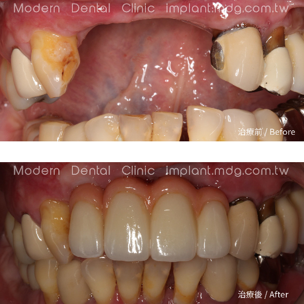 植牙手術都要求到完美無瑕的境界! 2