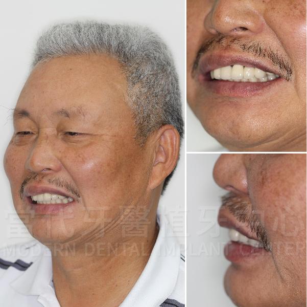 當天手術完就有牙真是太好了! 2